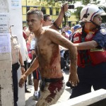 A rescue worker walks with an unidentified injured man during an uprising at the Centro Occidental (Uribana) prison in Barquisimeto