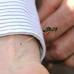 Picadura de abeja
