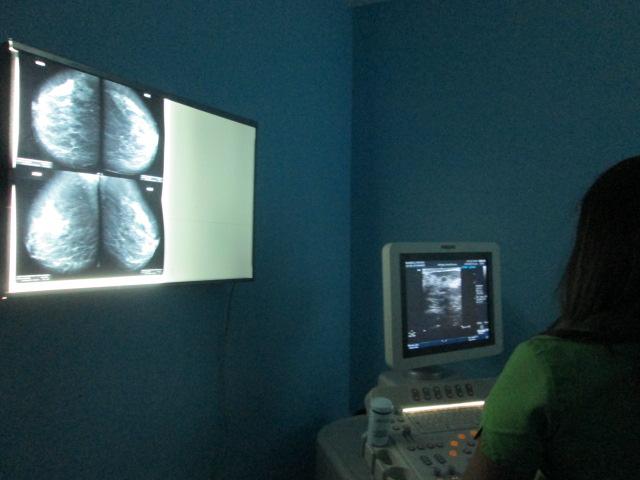 promueven-la-prevencion-del-cancer-con-ecos-mamarios