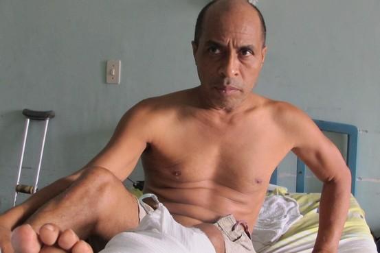Francisco Vera esperó meses para recibir una operación para reparar su pierna fracturada. Más tarde, cuando le dio una infección, le amputaron la pierna en el Hospital Universitario de Caracas (Juan Forero/The Wall Street Journal)