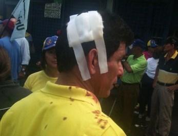 heridoMitinCapriles