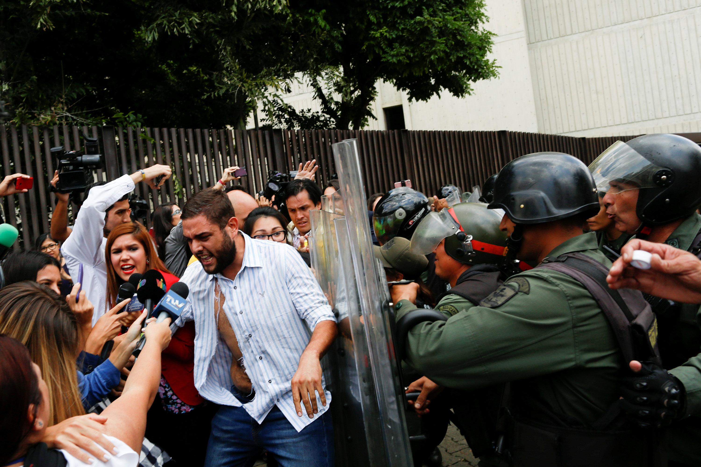 PERÚ: Venezuela: Congresista fue desfigurado durante una protesta