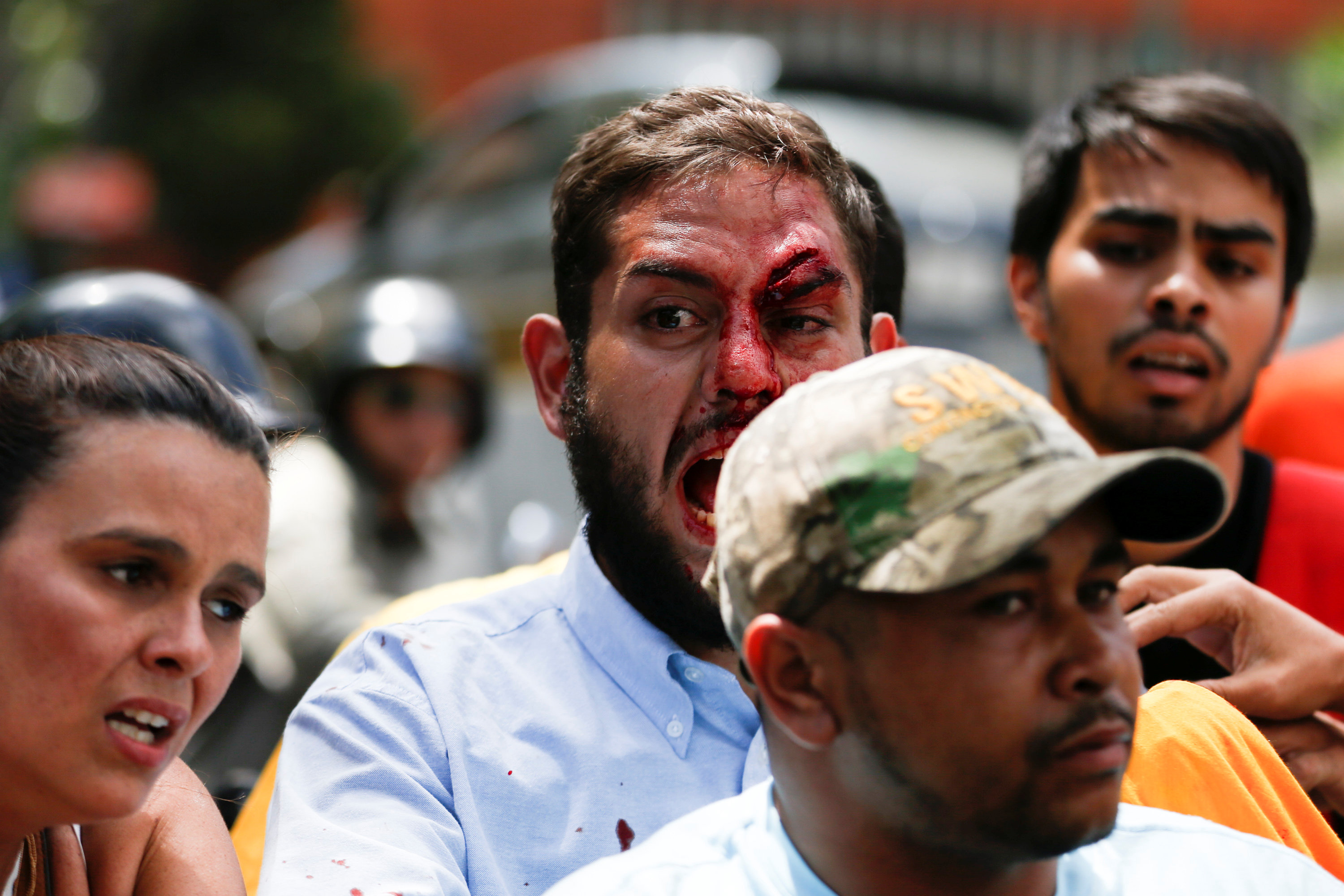 ATTENTION EDITORS - VISUAL COVERAGE OF SCENES OF INJURY OR DEATH  Juan Requesens, deputy of the Venezuelan coalition of opposition parties (MUD), shouts after been injured during clashes with pro-government supporters outside the offices of the Venezuela's ombudsman in Caracas, Venezuela April 3, 2017. REUTERS/Carlos Garcia Rawlins  TEMPLATE OUT