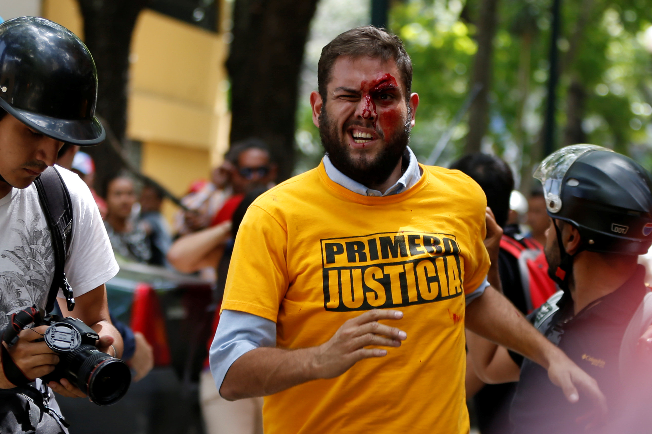 ATTENTION EDITORS - VISUAL COVERAGE OF SCENES OF INJURY OR DEATH   Juan Requesens (C), deputy of the Venezuelan coalition of opposition parties (MUD), reacts after been injured during clashes with pro-government supporters outside the offices of the Venezuela's ombudsman in Caracas, Venezuela April 3, 2017. REUTERS/Carlos Garcia Rawlins   TEMPLATE OUT     TPX IMAGES OF THE DAY