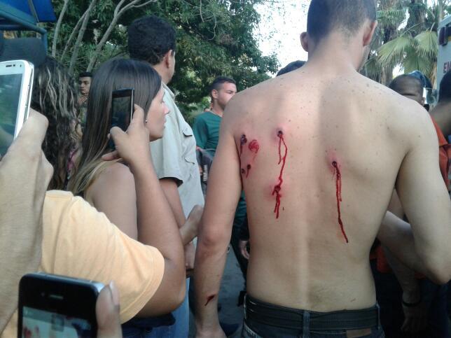 Uno de los heridos en la Universidad de Carabobo. Foto: Andrews Abreu