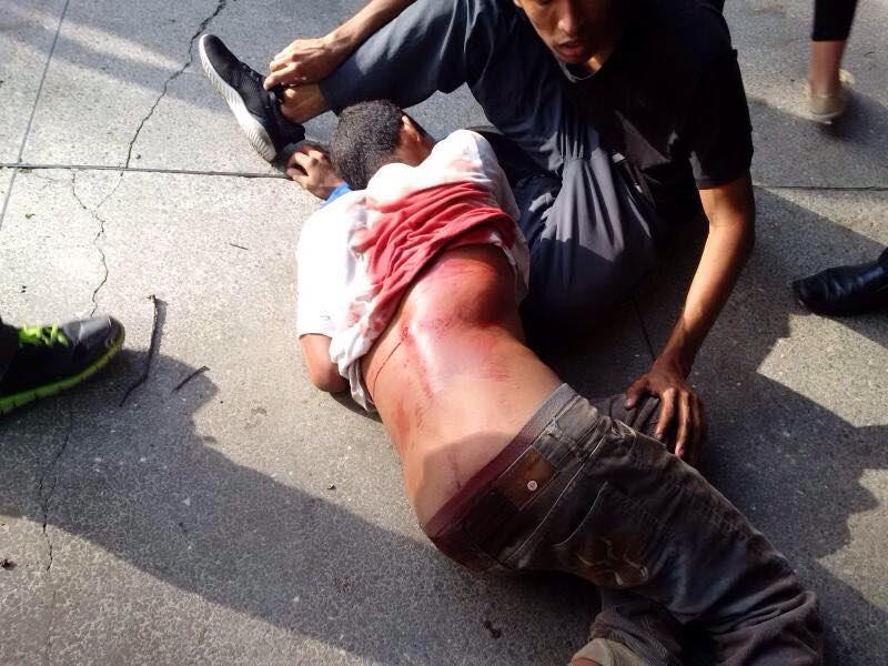Uno de los heridos en la UC. Foto: Ramón Bravo, director del comedor