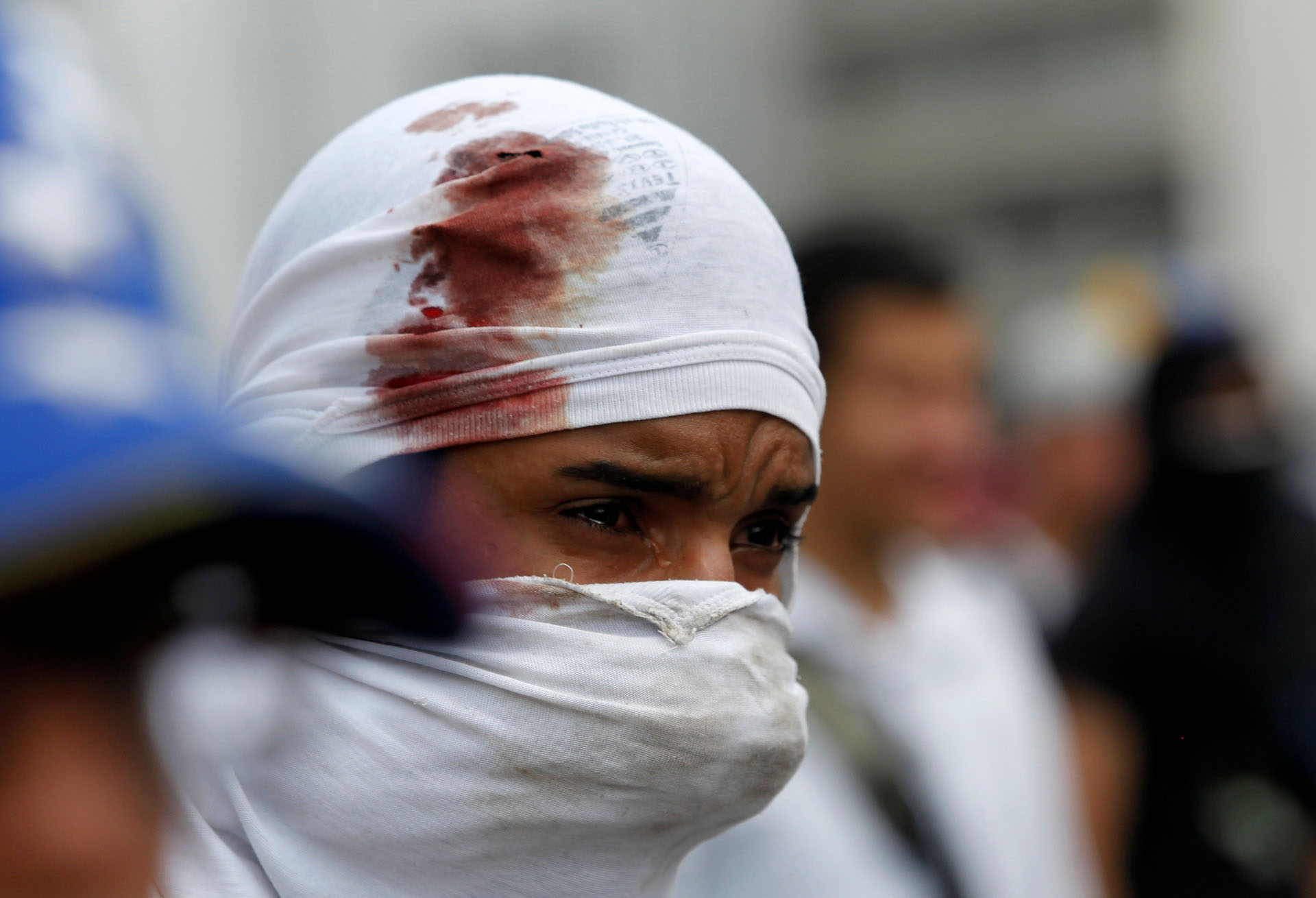 An injured demonstrator reacts during clashes with the police at an opposition rally in Caracas, Venezuela, April 6, 2017. REUTERS/Christian Veron