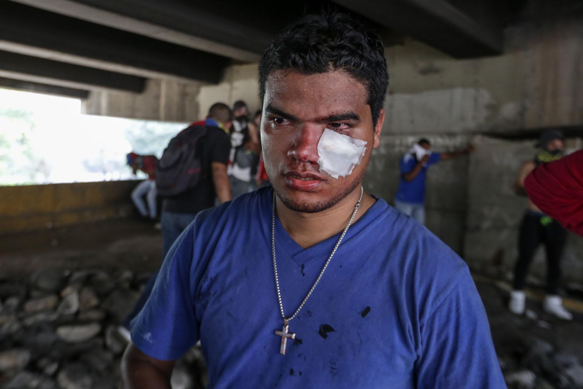 CAR01. CARACAS (VENEZUELA), 06/04/2017 - Vista de un hombre que resultó herido por conflictos con efectivos de la Policía Nacional Bolivariana (PNB) durante una manifestación de opositores al gobierno de Nicolás Maduro hoy, jueves 6 de abril de 2017, en Caracas (Venezuela). Dos fotógrafos de la Agencia EFE en Caracas resultaron heridos durante una protesta opositora en Caracas cuando agentes de los cuerpos de seguridad dispararon a quemarropa contra ellos mientras cubrían gráficamente la manifestación en el este de la capital venezolana. EFE/CRISTIAN HERNÁNDEZ