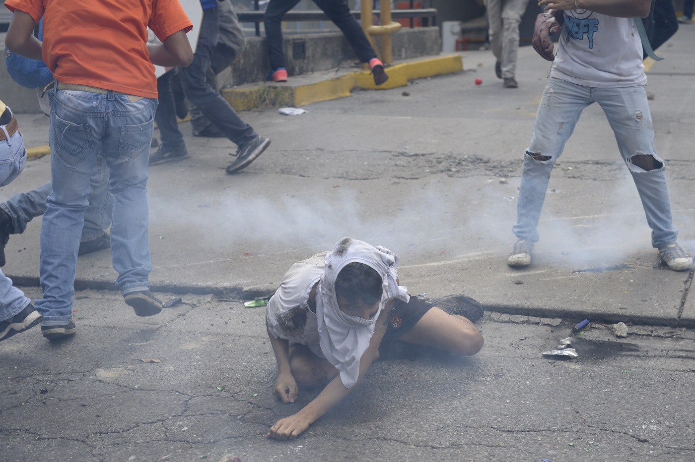 An opposition demonstrator ran over by a National Guard control vehicle tries to sit up during a protest against Venezuelan President Nicolas Maduro, in Caracas on May 3, 2017. Venezuela's angry opposition rallied Wednesday vowing huge street protests against President Nicolas Maduro's plan to rewrite the constitution and accusing him of dodging elections to cling to power despite deadly unrest. / AFP PHOTO / FEDERICO PARRA / GRAPHIC CONTENT