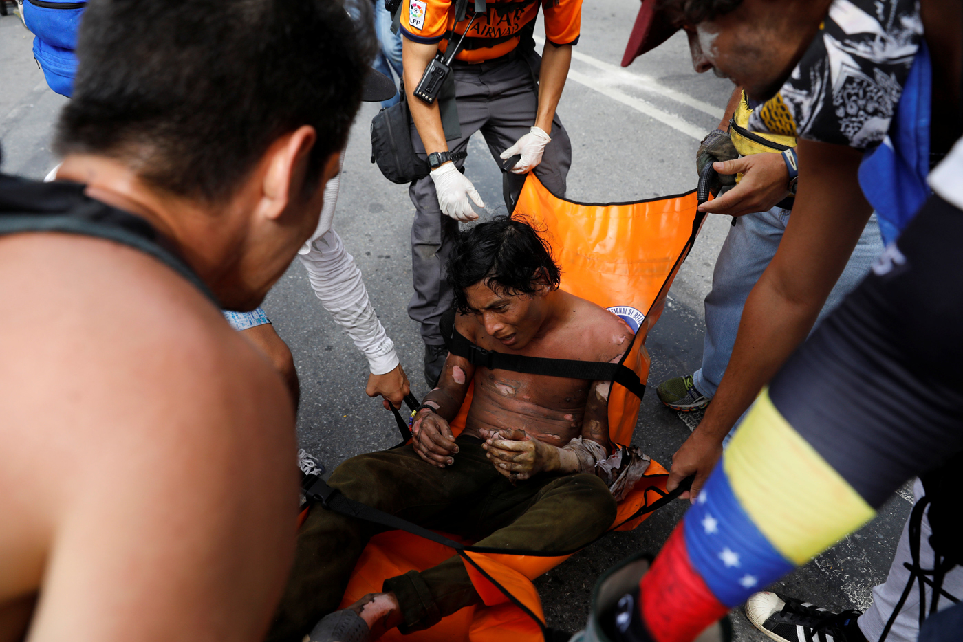 Reuters / joven quemado en las protestas de este #3May