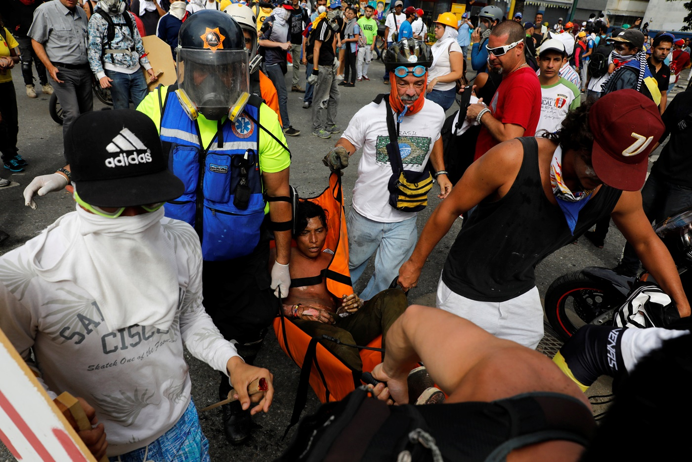 ATTENTION EDITORS - VISUAL COVERAGE OF SCENES OF INJURY OR DEATHAn injured opposition supporter is helped by others during a rally against President Nicolas Maduro in Caracas, Venezuela, May 3, 2017. REUTERS/Carlos Garcia Rawlins TEMPLATE OUT