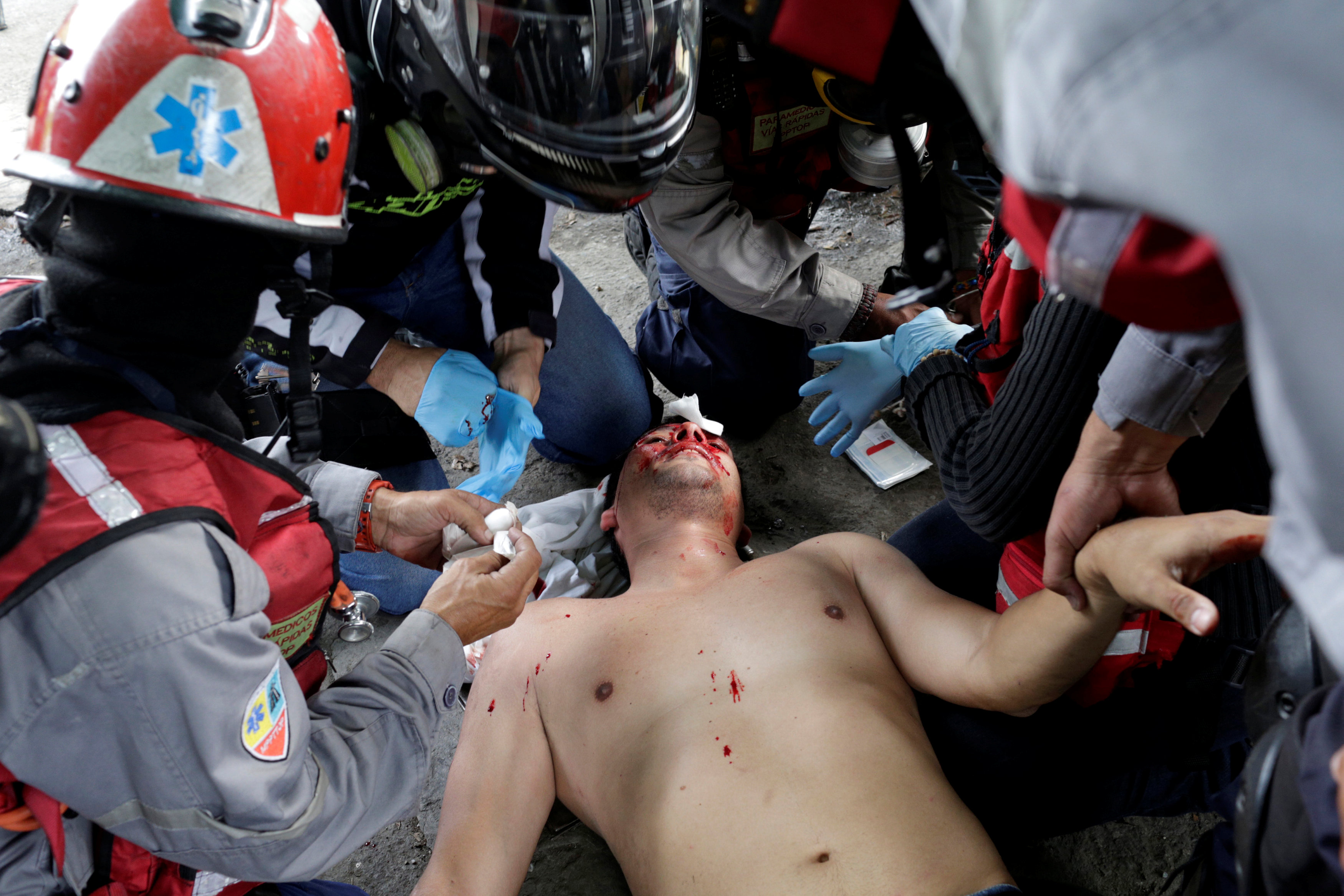 ATTENTION EDITORS - VISUAL COVERAGE OF SCENES OF INJURY An injured demonstrator is helped by paramedics during a rally against Venezuela's President Nicolas Maduro in Caracas, Venezuela, May 31, 2017. REUTERS/Marco BelloTEMPLATE OUT
