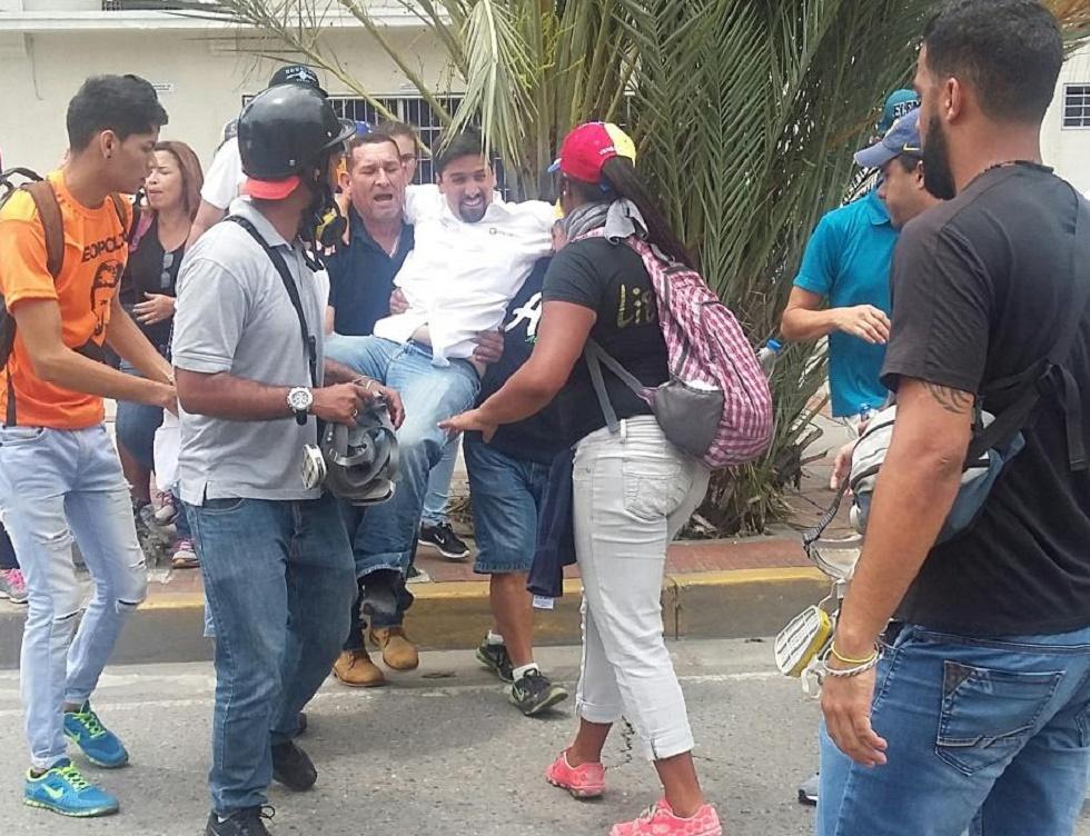 Freddy Guevara, diputado y primer vicepresidente de la AN herido este #3May / Foto @Marielascc