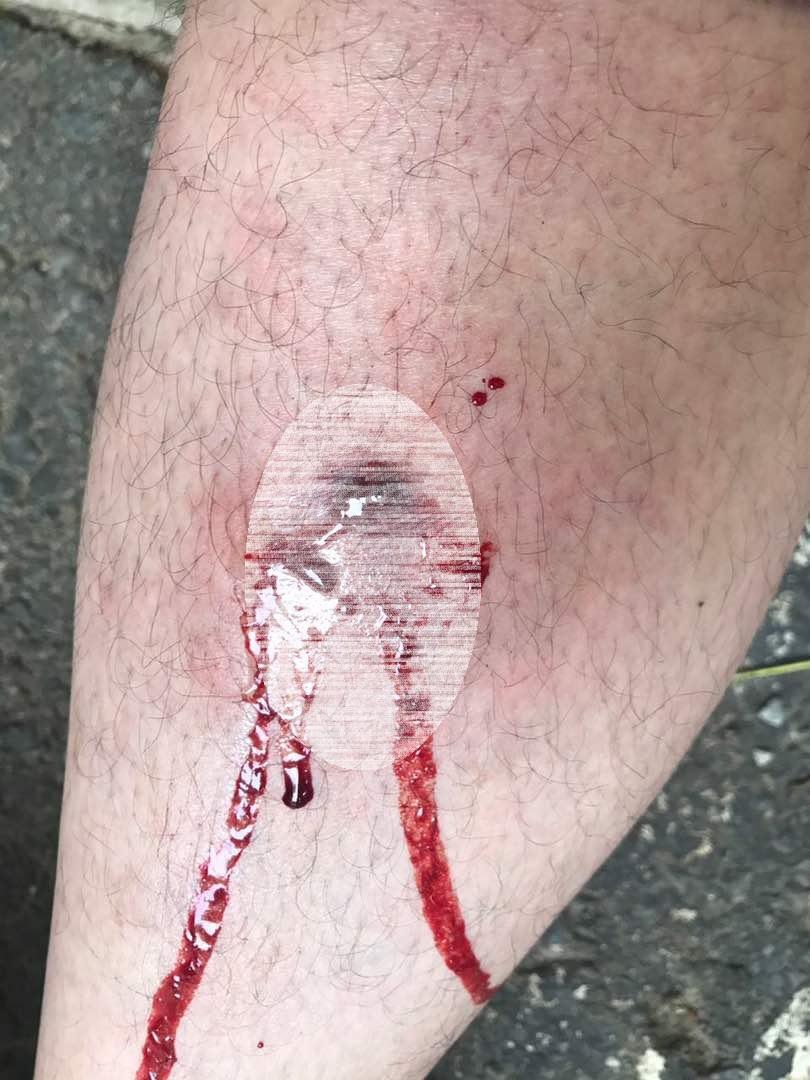 Herido el diputado Carlos Paparoni este #26May / Foto Prensa AN