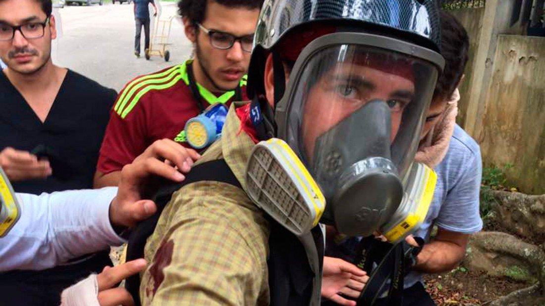 A Gustavo Vera de El Estímulo, la Guardia Nacional Bolivariana le disparó a quema ropa. Foto: @sntpvenezuela