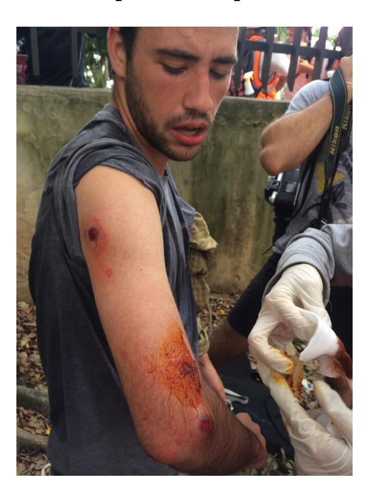 A Gustavo Vera de El Estímulo le dispararon a quema ropa pese a haberse identificado como trabajador de la prensa. Foto: Cortesía
