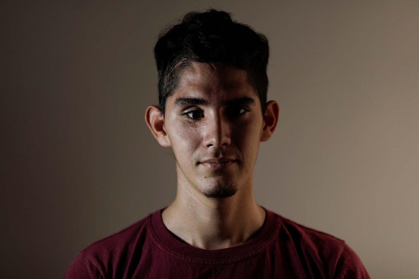David Osorio, de 21 años, es profesor de inglés y fue herido en un ojo por el lanzamiento de una bomba de gas por parte de las fuerzas de Maduro. UESLEI MARCELINO REUTERS