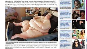Ya no es el más gordo del mundo porque perdió 286 kilos