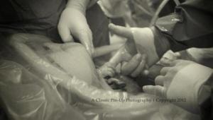 ¡Increíble! Esta bebé se aferró al dedo del cirujano en el vientre de su madre