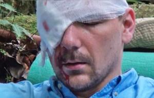 Fotógrafo checo casi se queda sin ojo por la lentitud de las autoridades en Venezuela