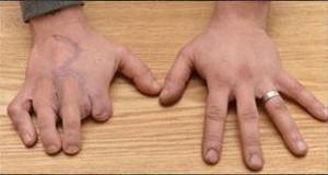 Perdió los dedos de las manos y le pusieron los de los pies (Fotos)