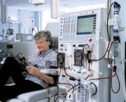 Un nuevo sistema de diálisis reduce un 30 % la mortalidad de los pacientes