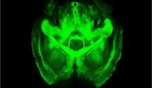 Una técnica que hace el cerebro transparente promete revolucionar su estudio