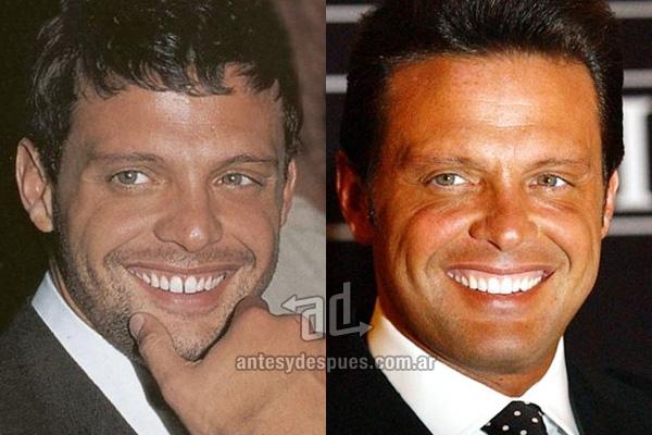 INCREÍBLE: El antes y el después de la dentadura de los famosos (Fotos)