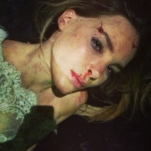 ¿Belinda tuvo un accidente? (FOTO)