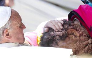 Conmovedor abrazo del Papa a una persona enferma (Fotos)