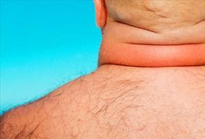 Cushing, un trastorno hormonal degenerativo confundido con obesidad