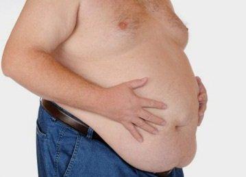 la-obesidad-morbida (1)