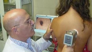 """Descubren cómo el melanoma consigue """"engañar"""" al sistema inmunológico"""
