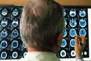 EEUU aprobó un nuevo medicamento contra el alzhéimer, el primero en casi dos décadas