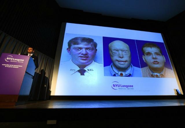 Médicos de Nueva York practicaron complejo trasplante de rostro (Fotos)