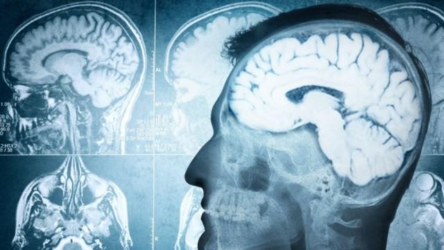 cerebro-machista