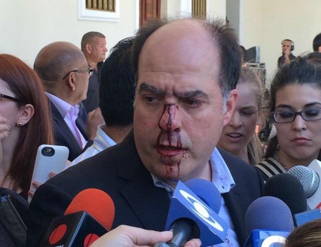 Foto: lapatilla.com