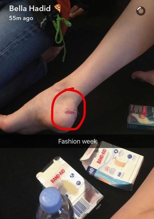 La modelo muestra sus heridas
