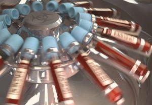 Crean el primer análisis de sangre que detecta melanomas en su primeras fases