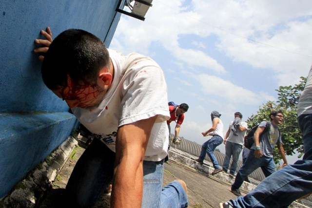 A demonstrator lies injured after riot police fired tear gas and rubber bullets at students opposing Venezuelan President Nicolas Maduro who were marching to protest in San Cristobal, Venezuela on April 5, 2017. University students and police clashed Wednesday during a protest in the Venezuelan city of San Cristobal (western border with Colombia), with a balance of at least a dozen injured. / AFP PHOTO / George Castellanos