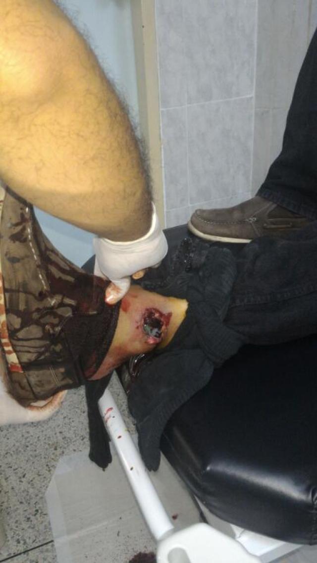 Manifestantes heridos en la UC: Foto: Andrews Abreu /VP