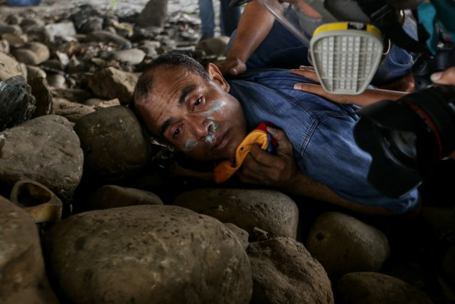 CAR01. CARACAS (VENEZUELA), 06/04/2017 - Vista de un hombre afectado por los gases lacrimógenos durante una manifestación de opositores al gobierno de Nicolás Maduro hoy, jueves 6 de abril de 2017, en Caracas (Venezuela). La Policía Nacional Bolivariana (PNB) dispersó hoy con gases lacrimógenos y agua una marcha opositora en Caracas que pretendía llegar hasta la Defensoría del Pueblo para pedir su respaldo al proceso iniciado por el Parlamento contra siete magistrados del Tribunal Supremo de Justicia (TSJ). EFE/CRISTIAN HERNÁNDEZ