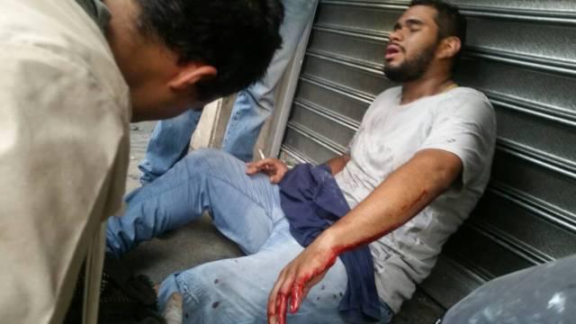 Uno de los heridos en Plaza Altamira recibe un cigarrillo a petición porque no aguanta el dolor. Foto: @HAIDYRODRIGUEZ