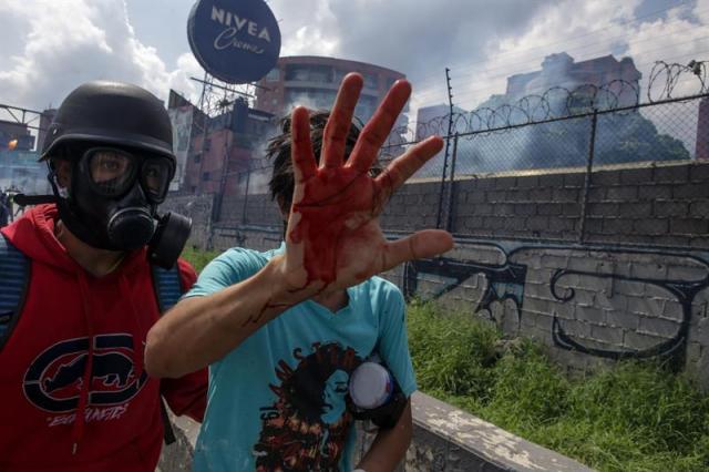 La brutal represión de este #10May que dejó un muerto y más de 160 heridos. EFE