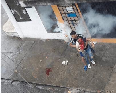 Ornelly Salas luego de ser herida por perdigones en su rostro / Foto: Juan Requesens