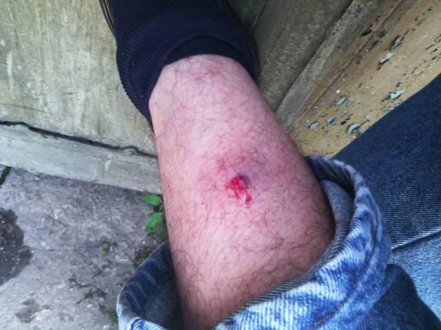 Ricardo Graffe herido en concentración en Valencia