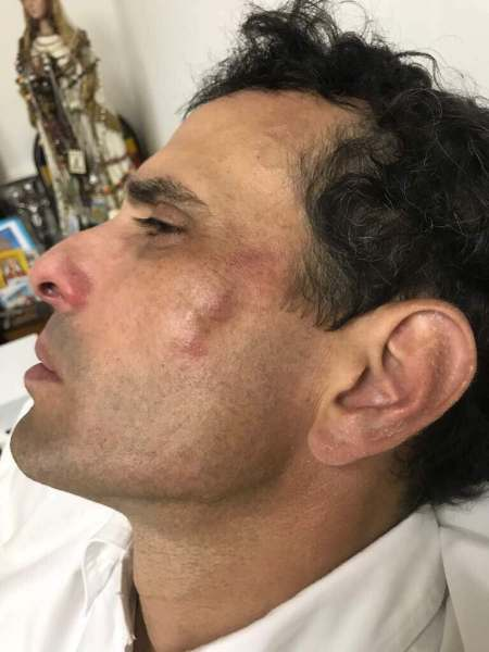 El gobernador del estado Miranda, Henrique Capriles, fue golpeado por la GNB (Foto: @joseolivaresm)