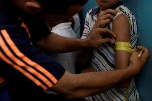 Registran 48 casos de desnutrición infantil en Lara