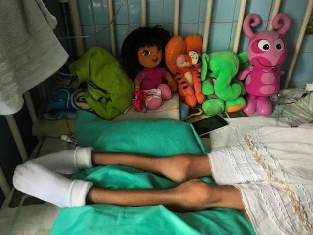 """Una niña se acuesta en una cama en el Hospital Infantil """"J.M. de los Ríos"""" de Caracas, Venezuela. 22 de junio 2017. De la mano de su mamá, Samuel Becerra ingresó a fines de marzo al hospital pediátrico J.M. De Los Ríos, en Caracas, para hacerse una hemodiálisis de rutina. Estando internado, el niño de 12 años contrajo una infección que acabó con su vida, junto a la de otros tres pequeños. REUTERS/Marco Bello - RTS1900Z"""