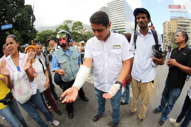 El diputado a la AN, por el estado Vargas, José Manuel Olivares fue uno de los más de 50 heridos tras la represión contra la marcha. Foto: Régulo Gómez / LaPatilla.com